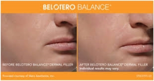 Belotero Before and After 2